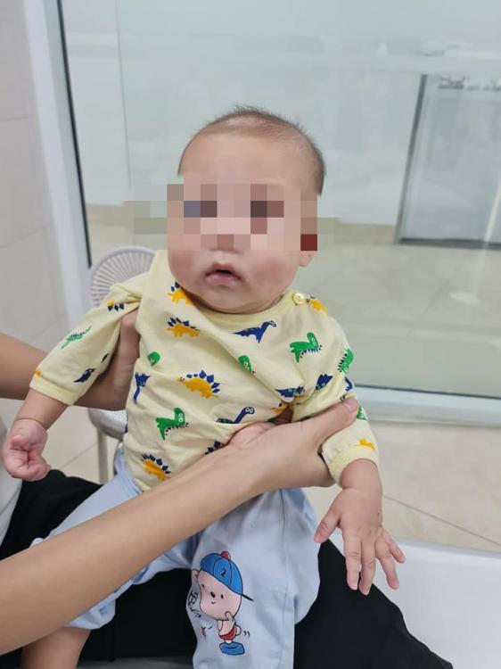 Chỉ sốt 1 ngày, bé trai mắc bệnh cực kỳ hiếm gặp, chưa từng có ở Việt Nam - 3